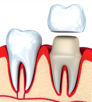 Dental Crowns in Williamstown, NJ