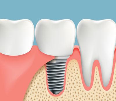 Dental Implants in Williamstown, NJ