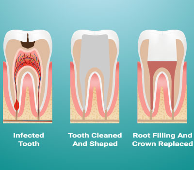 Root Canals in Williamstown, NJ