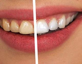 Teeth Whitening in Williamstown, NJ
