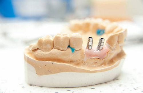 Dental Mini Implants in Williamstown, NJ